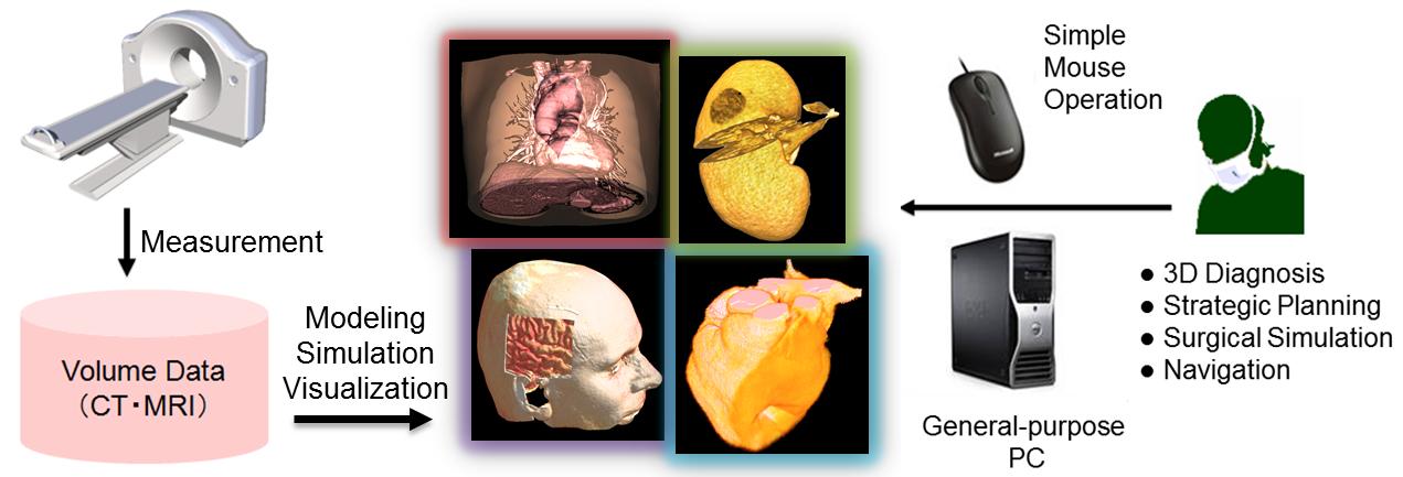 三次元画像の可視化・操作による手術支援