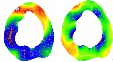心筋に生じる応力分布の解析
