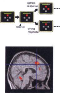 脳画像解析